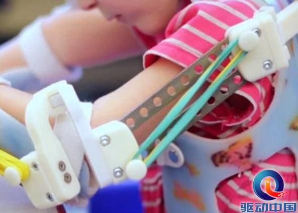 定制款机器人外骨骼面世 帮助残疾儿童重新站起来!