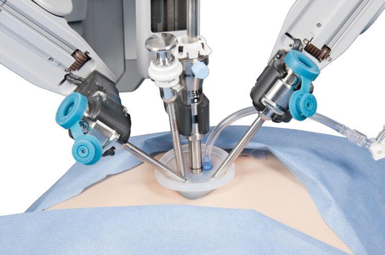 达芬奇手术机器人腕部