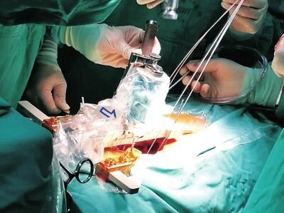 导诊、运药、查房、手术,机器人医院里显神通