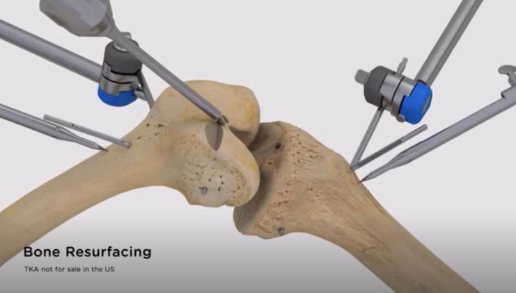 全自动膝关节置换手术机器人被美国FDA批准上市